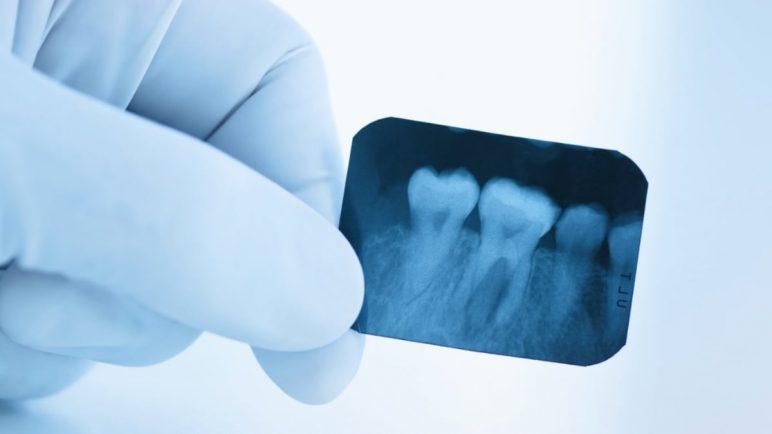 Рентген зуба в Тюмени